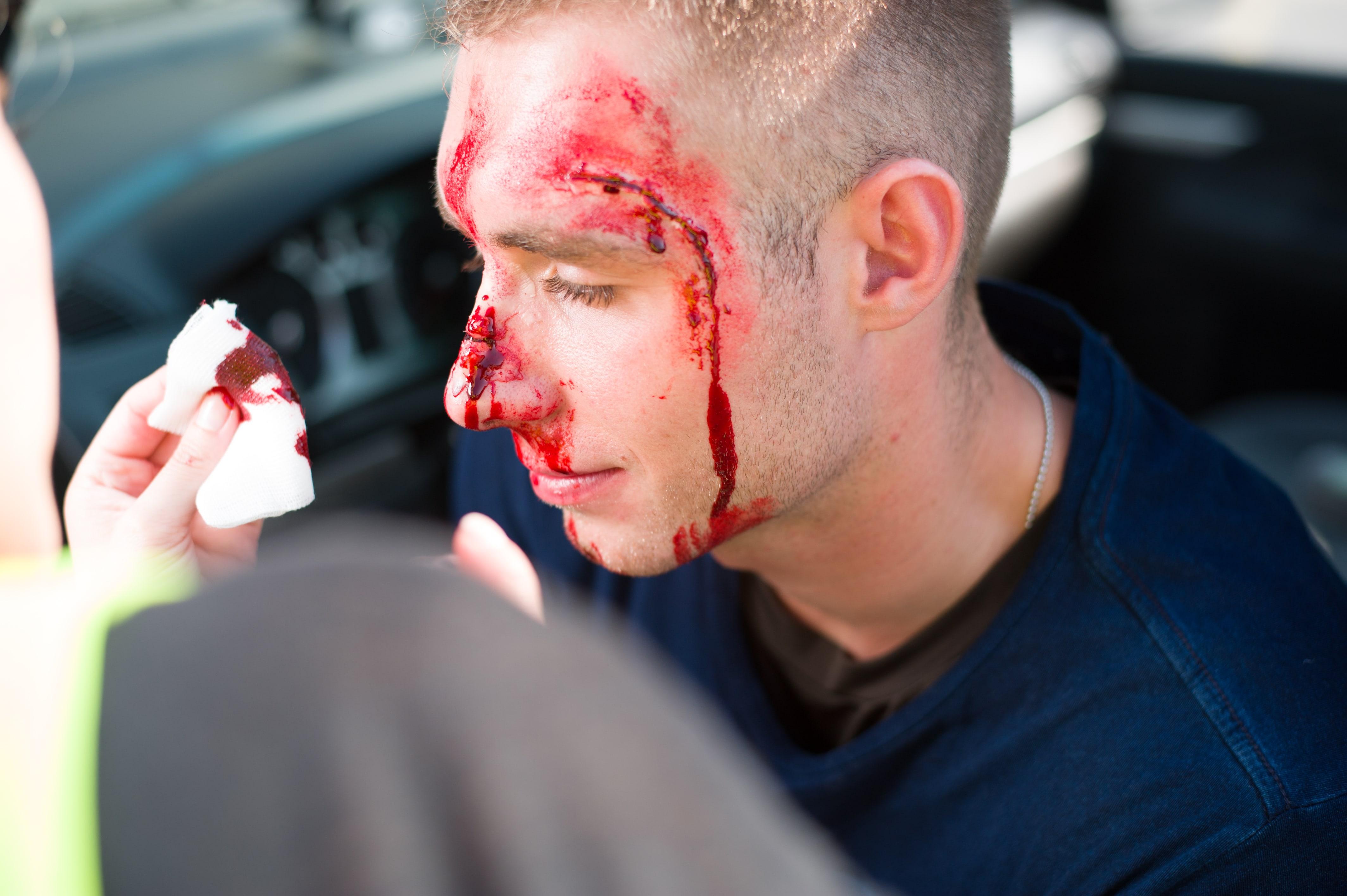 sztuczna krew, charakteryzacja medyczna, pierwsza pomoc uraz nosa, wypadek class=
