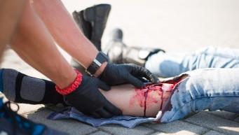 charakteryzacja ran, realistyczne rany emocje pierwszej pomocy, sztuczna krew