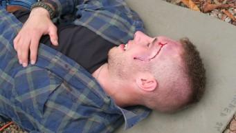 pierwsza pomoc przy urazie głowy, sztuczna krew, pozoracja medyczna