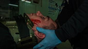 pierwsza pomoc, stabilizacja odcinka szyjnego, uraz kręgosłupa, kołnierz