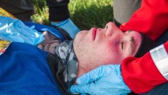 pierwsza pomoc uraz głowy, krwiaki okularowe, oczy szopa, spadochroniarz